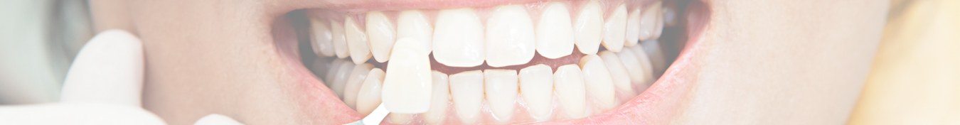 Dental Veneers Banner - DS Dental