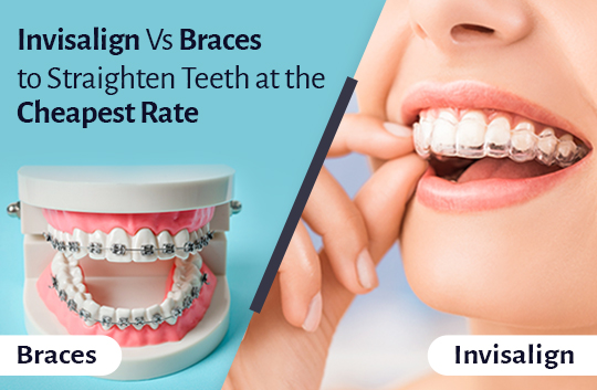 Invisalign Vs Braces - Dental Clinic London Small