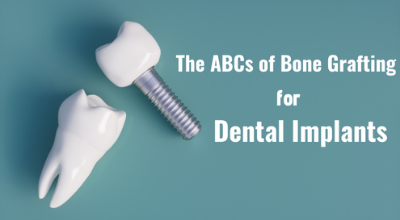 The_ABCs_of_Bone_Grafting_for_Dental_Implants