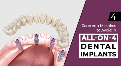 4 Common Mistakes You Must Avoid in All-on-4 Dental Implants